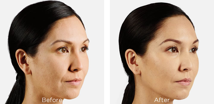 Juvederm Voluma, before and after 1 month