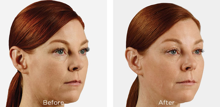 Juvederm treatment recovery is part of the procedure