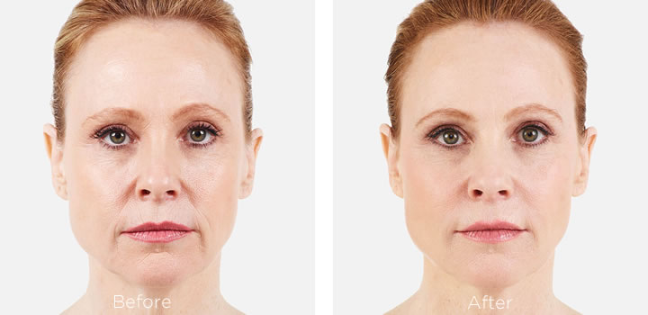 Juvederm filler can erase years of folds and wrinkles