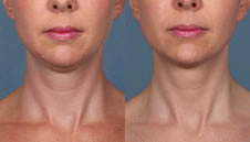 Kybella makes you look younger