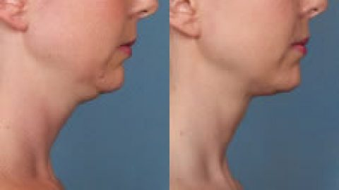 Double chin – Not your grandmother's double chin