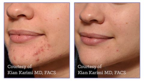 Microneedling Results For Skin Resurfacing