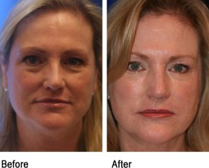 Brighten your complexion with platelet rich plasma therapy