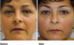 Microneedling using platelet rich plasma therapy