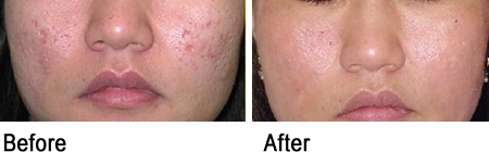 Acne scars minimized by PRP and microneedling