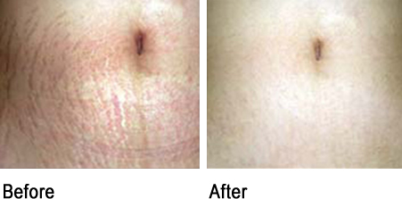 PRP and microneedling effect on stretch marks