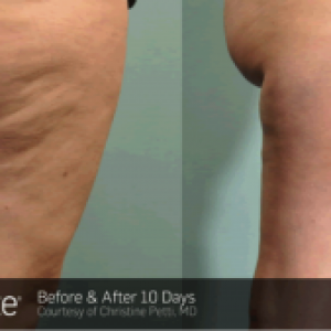 Cellulite is a Structural Problem