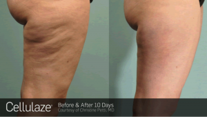Cellulite FAQ explains Cellulaze treatment