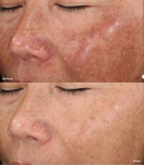 Chemical Peels, More Than Aesthetic Treatments