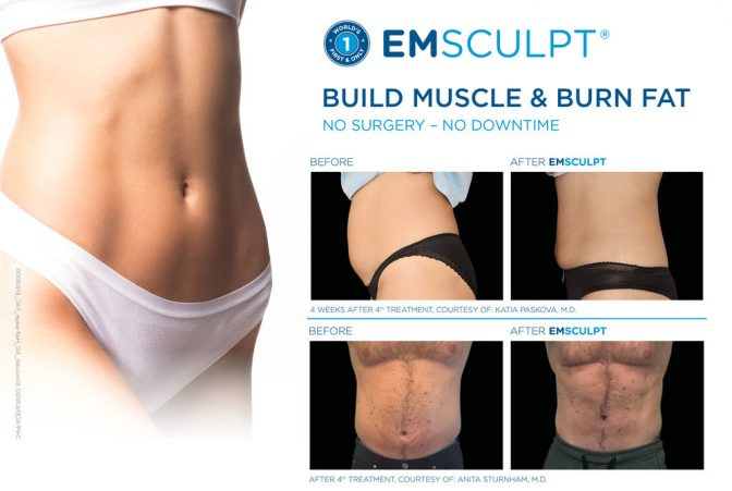 Emsculpt to build muscle and burn fat