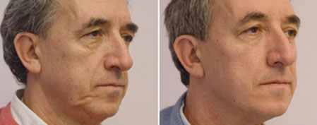 Suture facelift