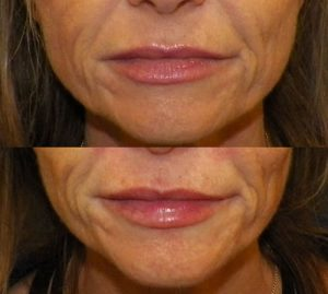 Injectable Restylane Silk for your perfect smile