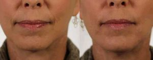 Injectable Revanesse Versa