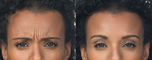Vedas discreet Botox