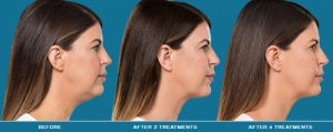 Injectable Kybella for your double chin
