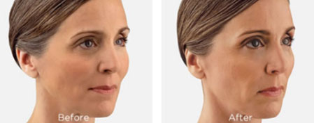 Injectable Juvederm restores volume