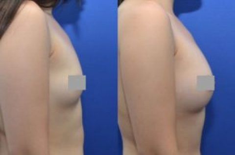 Fat Grafting uses your own fat as dermal filler