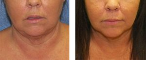 Smart Liposuction - chin