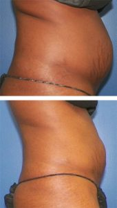 Body contour your abs