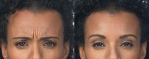 Injectable Botox wrinkle eraser
