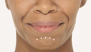 Radiesse for chin wrinkles