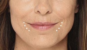 Radiesse filler for smile lines: Botox and fillers are your friend!