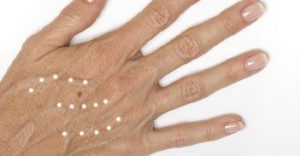 Radiesse for hand volume loss