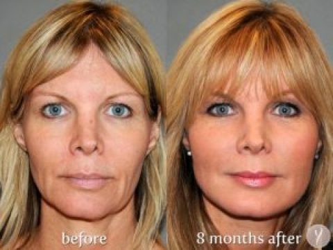 Facial Contouring with the YLIFT