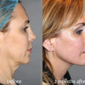 Mother's YAY facial rejuvenation consultation and $600 Botox FREE