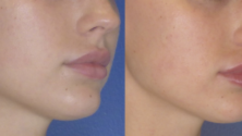 Perfect Pout with Juvederm