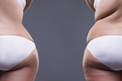 SmartLipo Body Fat Bye Bye