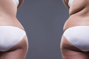 SmartLipo body fat