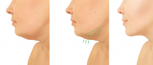 Shrink your zoom double chin with Kybella