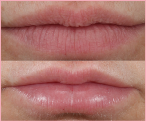 Lips fillers before and after