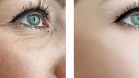 CO2 Fraxel Laser Smart Skin