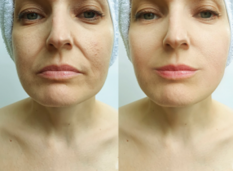 Smile Line Reduction Using Dermal Fillers