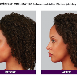 Juvederm Voluma for Chin Augmentation