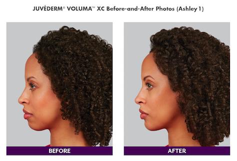 Juvederm Voluma for Chin Augmentation