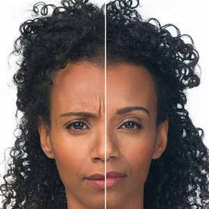 Image Allergan Before and After