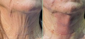 Threadlift: think skin scaffolding