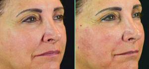 Skin Scaffolding