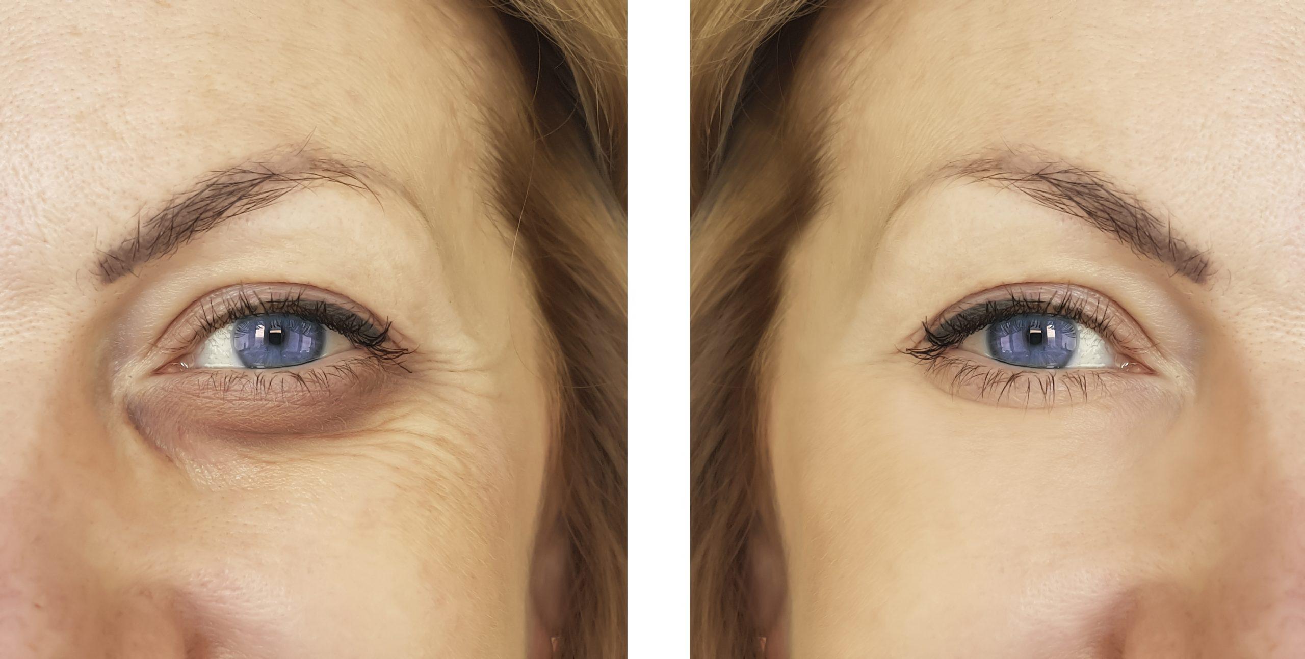 Options to treat my eye area